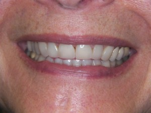 Cosmetic Dentistry after 1